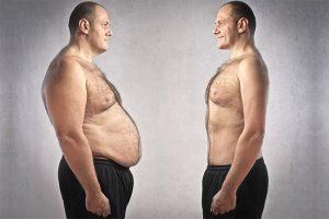 Tratamento de Criolipólise para homens