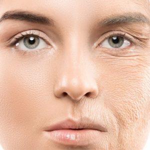 Você pode eliminar as rugas no rosto?