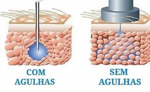 hialuronic pen tratamento sem aghulas