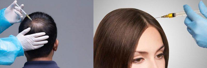 tratamento queda de cabelo salvador bahia