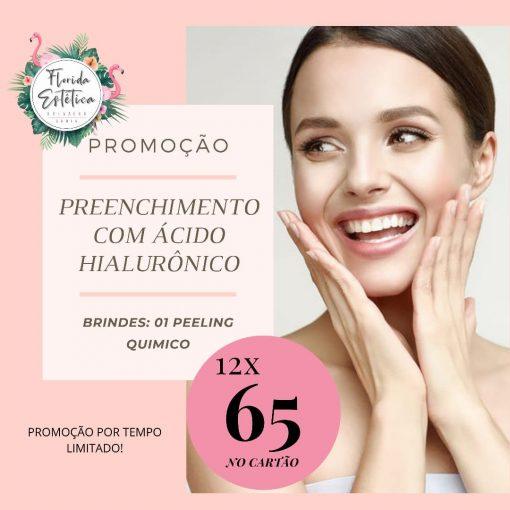 PREENCHIMENTO BIGODE CHINÊS OU LABIOS 01 AMPOLA + PEELING QUIMICO
