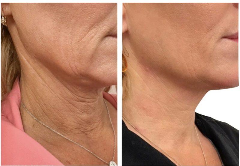 rejuvenescimento facial salvador