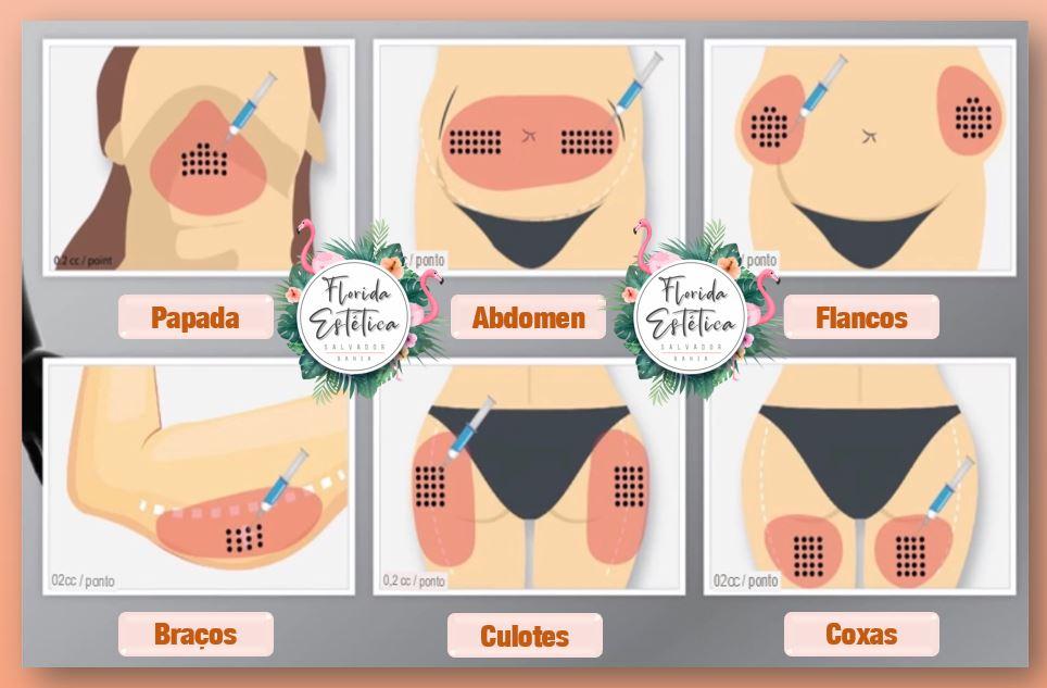 Aplicação de Enzimas Salvador, áreas do corpo
